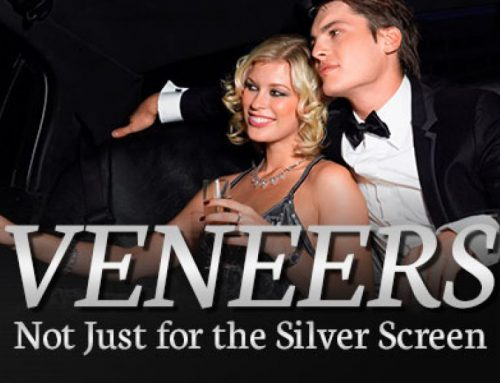 Veneers – Not Just for the Silver Screen